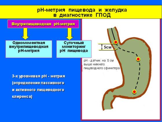 pH-метрия