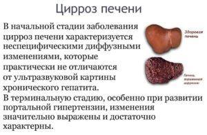 Желчнокаменная болезнь при циррозе печени