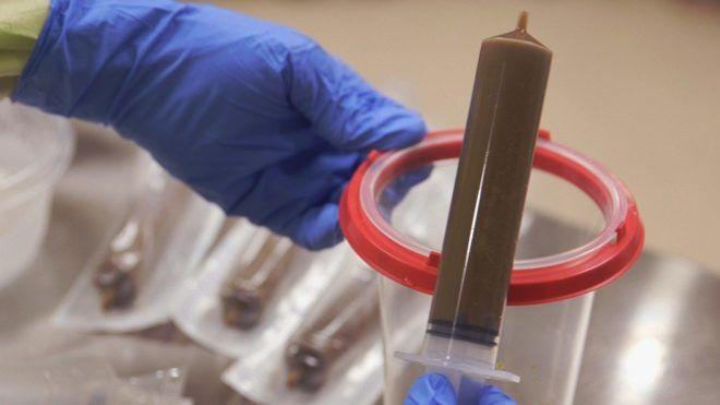 Исследование кала для диагностики вируса Коксаки