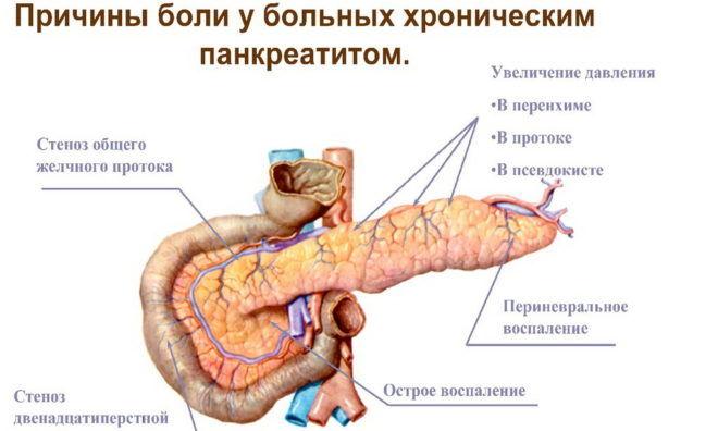 Причины развития панкреатита